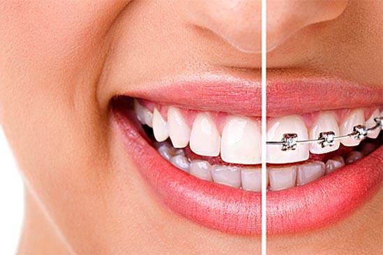 ortodonts